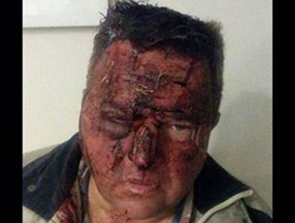 Breaking News:- Another Farm Attack On Defenseless Farmer. Share To Help The Police Catch Them