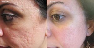 Nerium Night cream helps with anti aging but also scars, acne, uneven skin, and more!  TaylorMJones.nerium.com