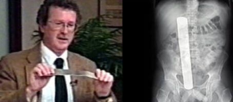 What if one of the surgeon's tools is left deep within your body? What are you supposed to do? This is what happened to 49-year old Donald Church, who had a tumor removed from his abdomen. The doctors successfully removed the tumor, but left is a 13-inch long retractor in his abdomen. It was revealed that the University Of Washington Medical Center in Seattle had 4 previous incidents of a similar nature between 1997 & the year 2000. The hospital had to pay him damages worth $97,000.