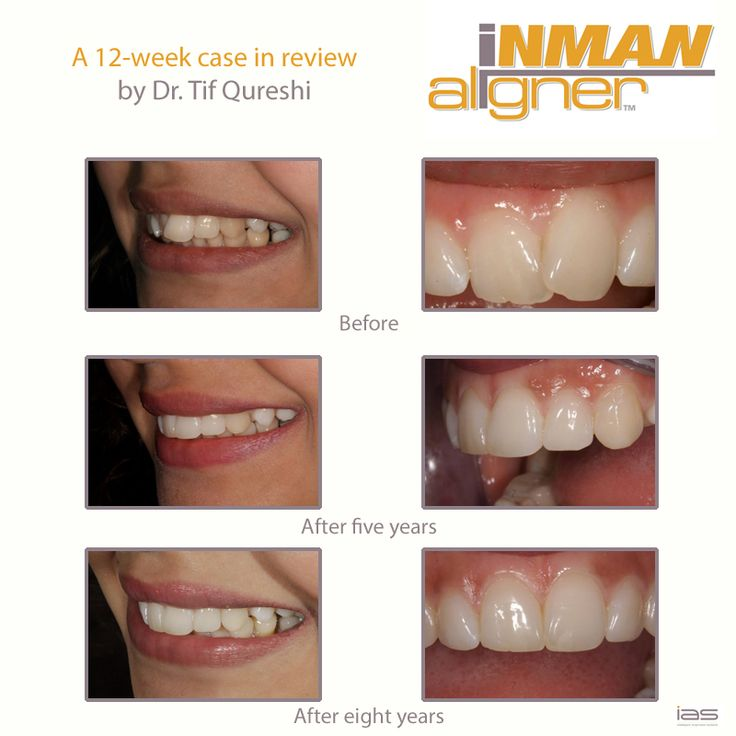 8 years later, still a happy patient. Use our Find a Dentistsearch engine to find a certified dentist near you! www.inmanaligner.com