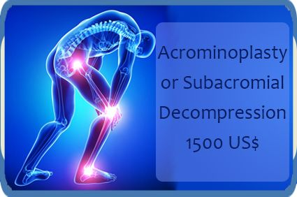 #Acrominoplasty Surgery | Orthopedic Surgery | Pune, #India