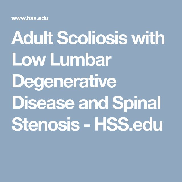 Adult Scoliosis with Low Lumbar Degenerative Disease and Spinal Stenosis - HSS.edu