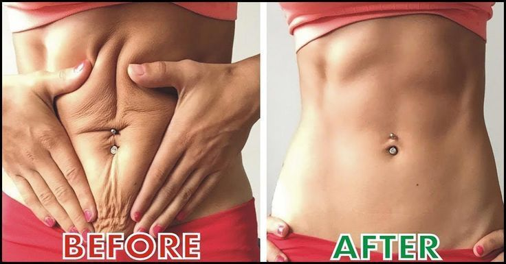 How To Tighten Loose Skin After Pregnancy Naturally: 9 Tips – #Loose #Naturally …