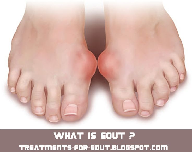 most effective gout treatment symptoms of higher level of uric acid foods for lowering uric acid