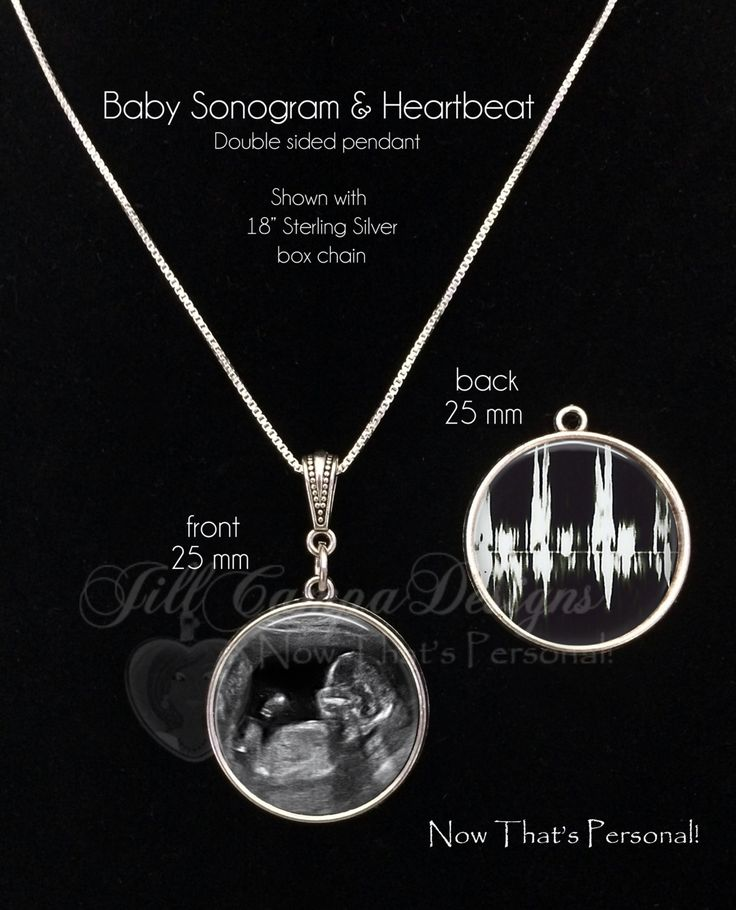 SONOGRAM and HEARTBEAT NECKLACE - Your baby's sonogram and heartbeat on a 2 sided necklace or keychain - baby sonogram jewelry - sonogram by NowThatsPersonal on Etsy