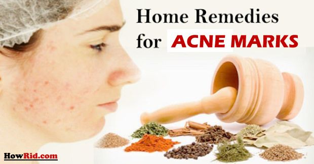 Home Remedies for Acne Marks