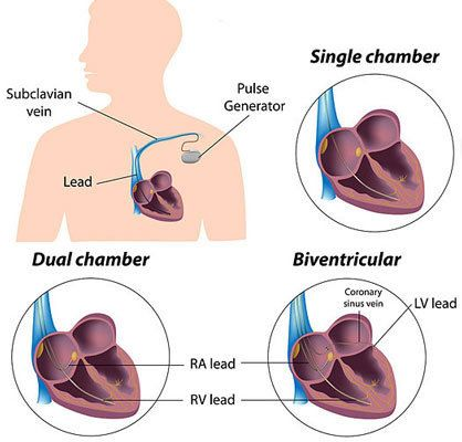 What are some different types of heart surgery?