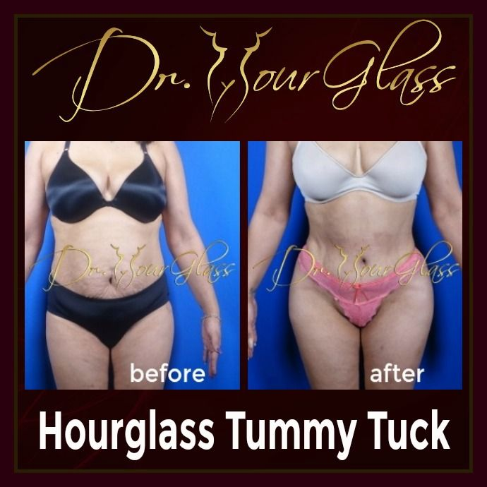 She thinks that it's not possible to achieve the body that she wanted from the start, but she's so amazed with the final outcome of her Hourglass Tummy Tuck procedure because it did eliminate excessive fat deposits around her abdomen making her body a lot sexier than before.