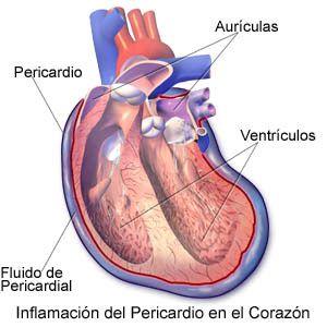 Homeopatía & Salud: Protocolos Banerji -   DERRAME PERICÁRDICO    Lycopodium 30 CH, 2 veces/día + Lachesis mutus 200 CH, a días alternos.  Se puede añadir Crataegus oxyacanta T.M., si el corazón está débil.
