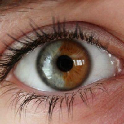Heterochromia Iridum. Bruine ogen veranderen naar blauwe ogen met laser.