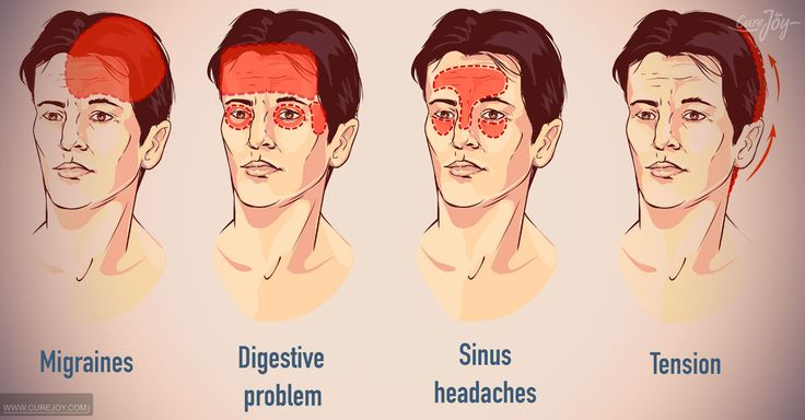 Natural Headache Cures: Headache Remedies That Work