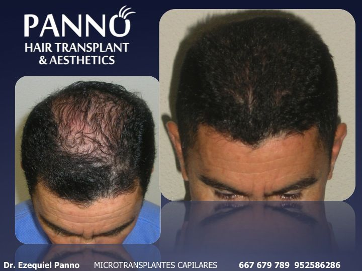 recupera tu pelo tambien sin cirugia con los tratamientos no invasivos del Dr. Panno