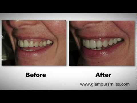 Cosmetic Dental Bridge and Porcelain Crowns on Front Teeth on Elk Grove, Illinois by Dr. Engelberg http://cosmetics-reviews.ru/2017/12/27/cosmetic-dental-bridge-and-porcelain-crowns-on-front-teeth-on-elk-grove-illinois-by-dr-engelberg/