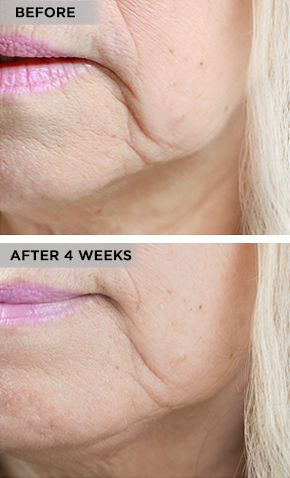 Beverly Hills MD Lift and Firm Review: Is It the Perfect Anti-Aging Cream?