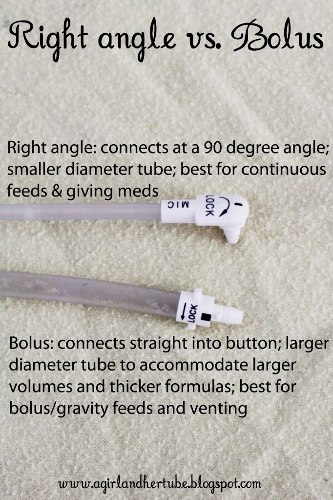 Feeding Tube Terminology: G tube words. Repinned by SOS Inc. Resources pinterest.com/sostherapy/.