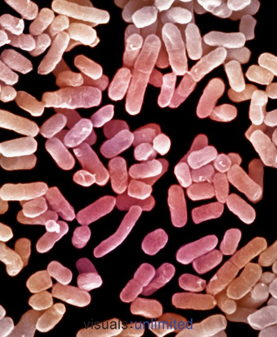 These bacteria (Klebsiella pneumoniae) live in the intestines and lungs and may cause pneumonia, meningitis, and other diseases. The bacteria are surrounded by a capsule and this protects them from being consumed by macrophages. SEM X9600. **On Page Credit Required**