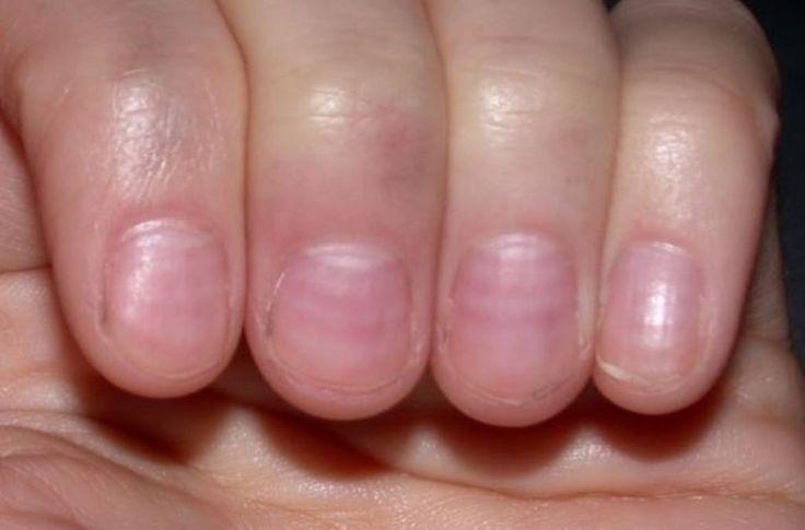 Les ongles peuvent servir à identifier une foule de problèmes de santé