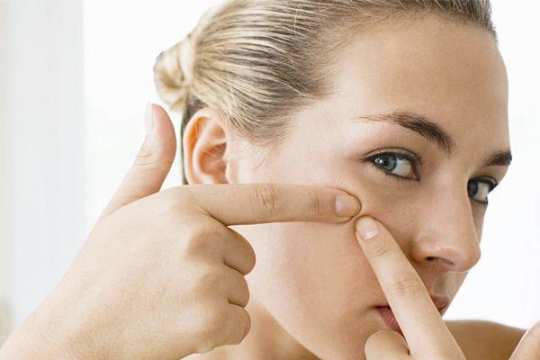 Cara Mudah and Efektif  Untuk Mencegah Jerawat | http://www.wom.my/kecantikan/mencegah-jerawat/