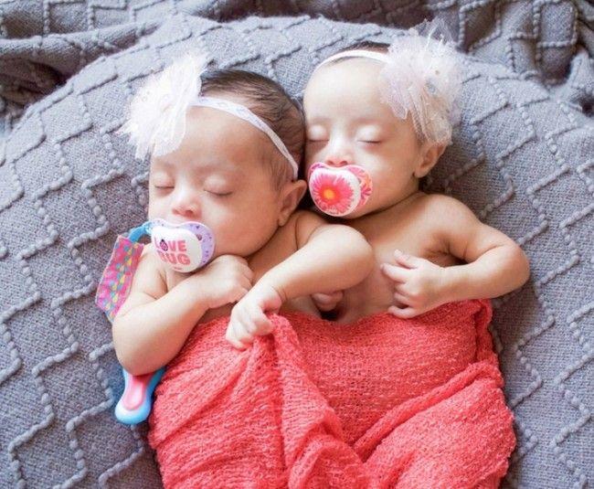 Pregnant with multiples: Prenatal genetic testing ...