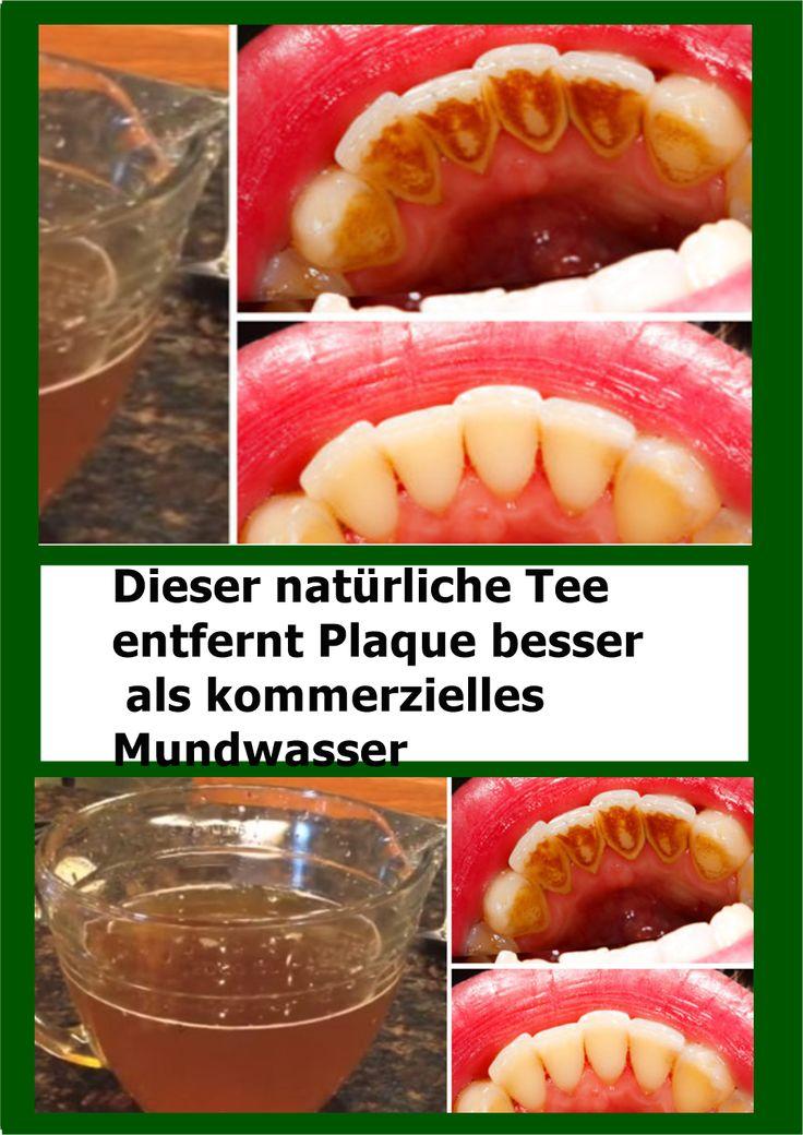 Dieser natürliche Tee entfernt Plaque besser als kommerzielles Mundwasser | nju…