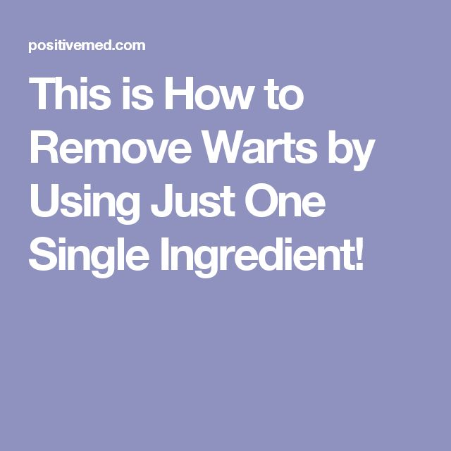 This is How to Remove Warts by Using Just One Single Ingredient!