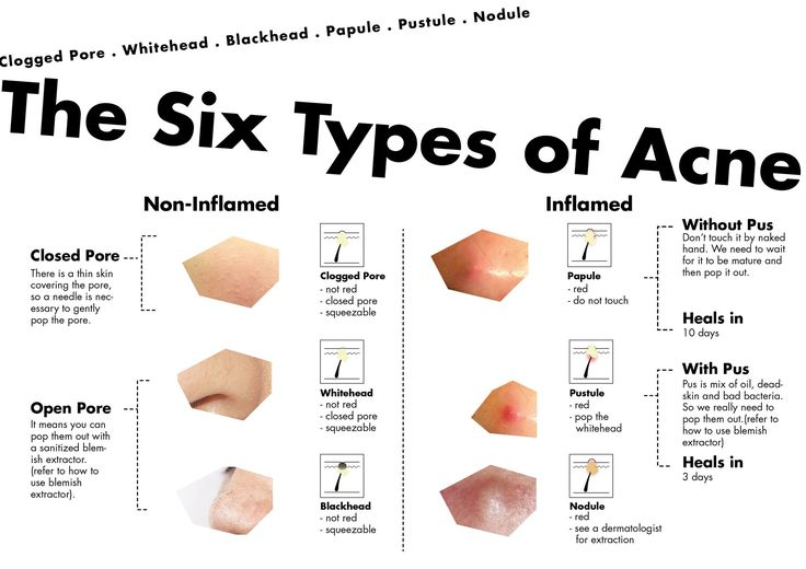Acne What are the six types of acne infographic...
