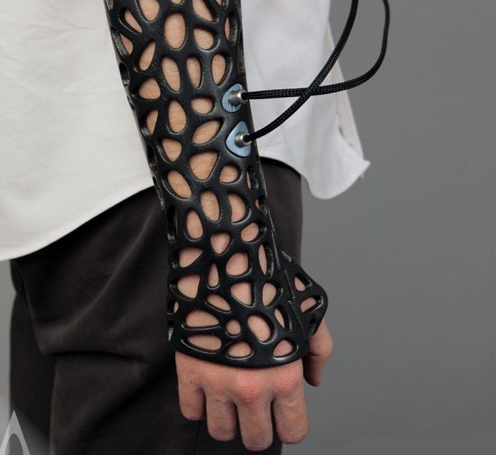A new prototype brings together 3D printing, room to breathe and ultrasound pulses to create a cast that is not only comfortable and stylish to wear but is expected to speed healing relative to existing options.
