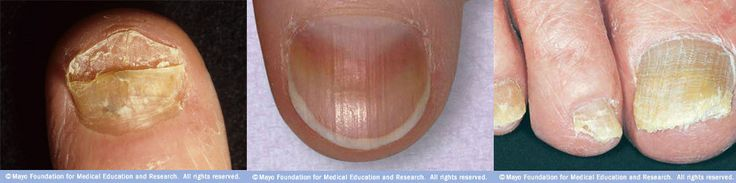 Nail discoloration, streaks, crumbling, inflamed skin, foul odor. Learn effective toenail fungus treatment methods with baking soda and vinegar.