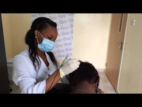 Hair loss treatment Lagos Nigeria -  How To Stop Hair Loss And Regrow It The Natural Way! CLICK HERE! #hair #hairloss #hairlosswomen #hairtreatment Quick look inside our hair loss clinic in Lagos where a SMP treatmet is being carried out, Vinci Hair Clinic in Nigeria offers SMP – Scalp Micro Pigmentation, PRP and Mesotheapy... - #HairLoss