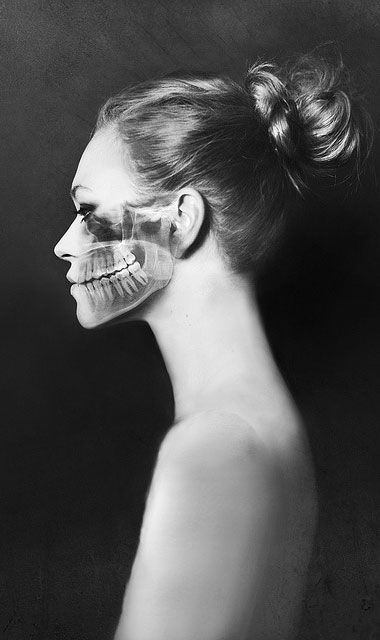 """""""Break II"""" - Sabine Fischer, 2012 {jaw x-ray superimposed over woman profile photography}"""