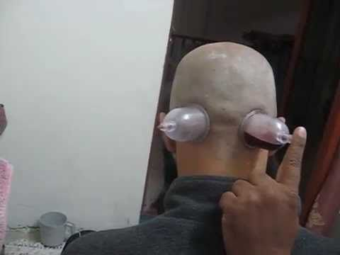 Blood Cupping for loss of hair and week,falling  hairs,Usman Baloch in Pakistan www.cupping.ws -  How To Stop Hair Loss And Regrow It The Natural Way! CLICK HERE! #hair #hairloss #hairlosswomen #hairtreatment Hijamah/bloodleting/cupping on the back side of head done in lahore pakistan in al-hiajamah center ,this treatment was done for weak and falling hairs and for dandruff problem and... - #HairLoss