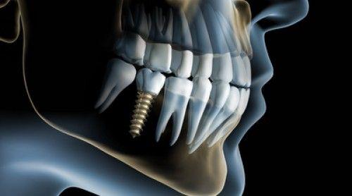 Cirugía Maxilofacial-Implantología