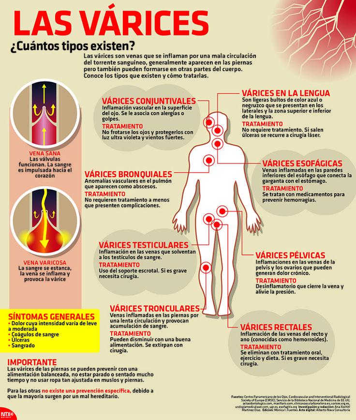 Las várices son venas que se inflaman por una mala circulación del torrente sanguíneo, generalmente aparecen en las piernas pero también pueden formarse en otras partes del cuerpo. #Salud
