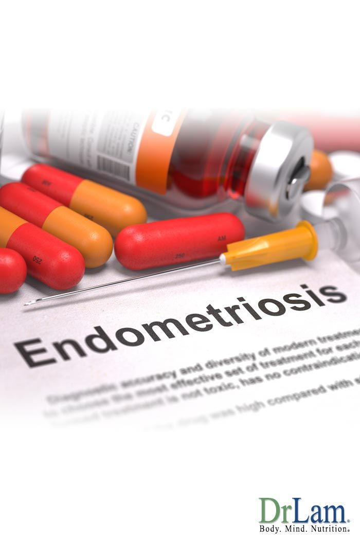 The complete guide to vitamins for endometriosis and Adrenal Fatigue.