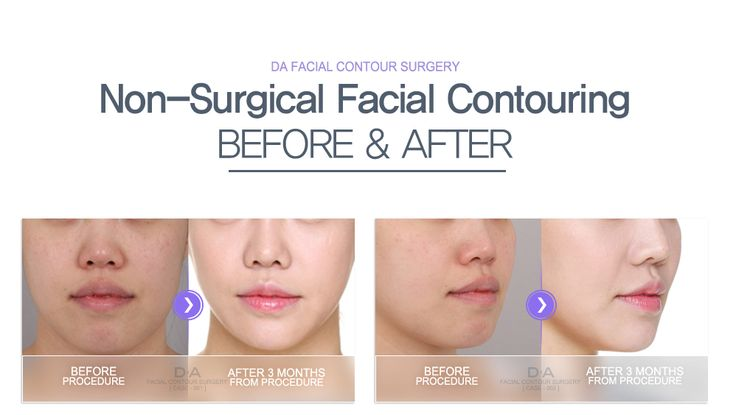 DA non surgical V-line injection. Ask inquiry/Make a reservation email:  info-en@daprs.com  #daplasticsurgery #plasticsurgery #cosmeticsurgery #gangnam #gangnamplasticsurgery #korea #koreaplasticsurgery #koreanbeauty #koreabeauty #beauty #girlythings #vline #facialcontouring #injection #vlineinjection #model #damodel #beforeafter #beforeandafter