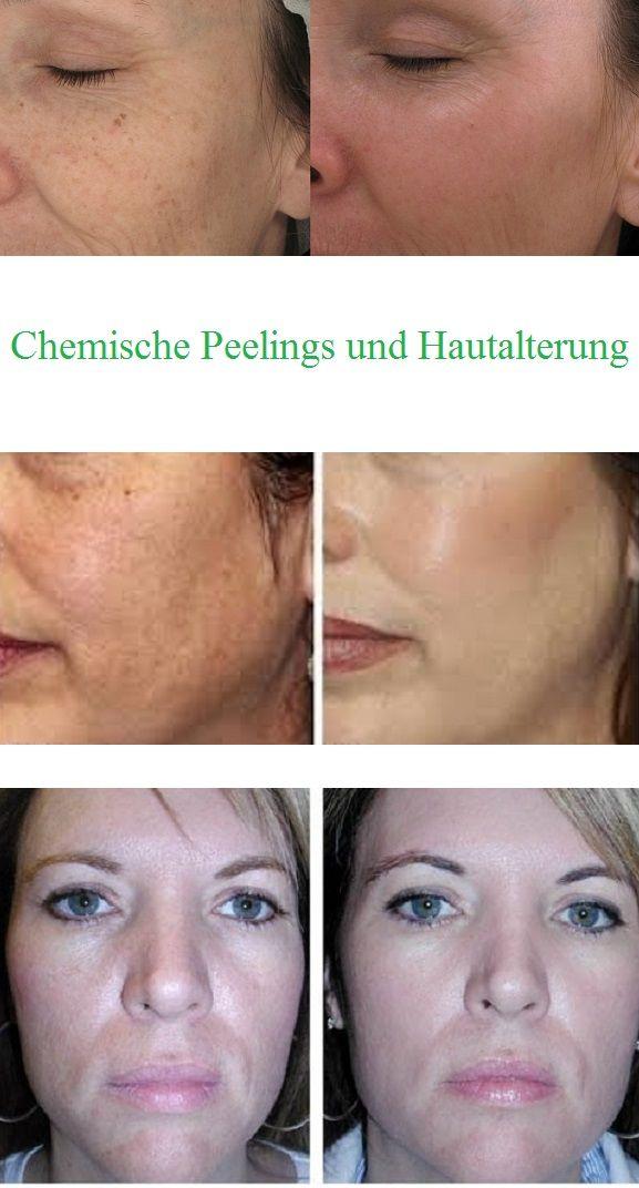 Regelmäßige Peeling-Behandlungen mit Fruchtsäure (auch bekannt unter: Glykolsäure, Alpha-Hydroxisäure, AHA) können Ihr Aussehen signifikant bei Alterungserscheinungen der Haut verbessern. Chemische Peelings sorgen auf natürliche Weise für eine gesunde Funktion der Hautbarriere