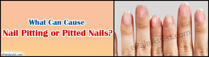 What Can Cause Nail Pitting or Pitted Nails?  Read: http://www.epainassist.com/skin/what-can-cause-nail-pitting-or-pitted-nails