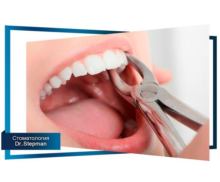 Симптомы и лечение перикоронарита. Часть 3. #полезное #статья #зубы #стоматология  Смотри все части статей по этому хэштегу 📌#лечениеперикоронарита  Диагностика перикоронарита При диагностике перикоронарита стоматолог основывается на имеющихся жалобах пациента, на инструментальном осмотре пораженной области десны, а также на данных рентгенологического исследования. В зависимости от полученных данных назначается необходимое лечение.  Лечение перикоронарита Данная операция обеспечивает…