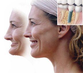 Jak implanty poprawiają uśmiech.