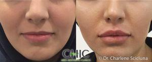 Lip-Enhancement-4-B&A-CHIC-Malta