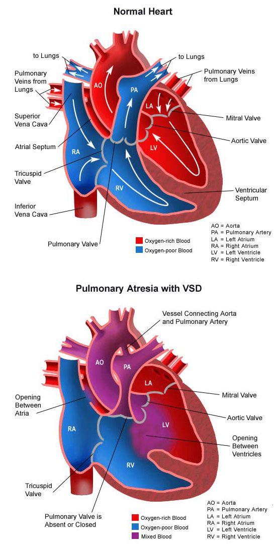 27 besten Pulmonary Atresia Bilder auf Pinterest   Anatomie ...