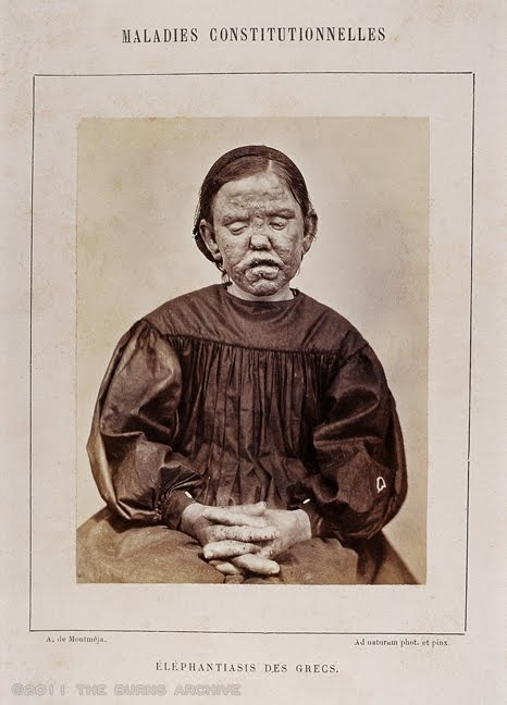 LEPROSY, 1867  This photograph taken by ophthalmologist A. de Montméja in 1867 was published in French dermatologist Alfred Hardy 1868 text Clinique photographique de l'hopital Saint-Louis. Leprosy a disease misunderstood and dreaded for centuries was found to be caused by a bacterium in 1871 by Norwegian physician Gerhard Hansen. It was the first disease to be proven to be caused by bacteria. The condition is slowly progressive condition with several forms.