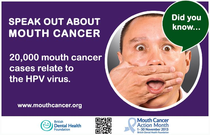 Mouth Cancer Action Month Did you know? 20,000 mouth cancer cases relate to the HPV virus. What are the risk factors? - > http://www.mouthcancer.org/page/risk-factors #MCAM #DidYouKnow #MouthCancer