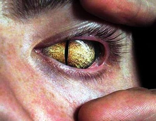 David Icke - The Phenomenon of Reptilian Eyes (Demon Possession)