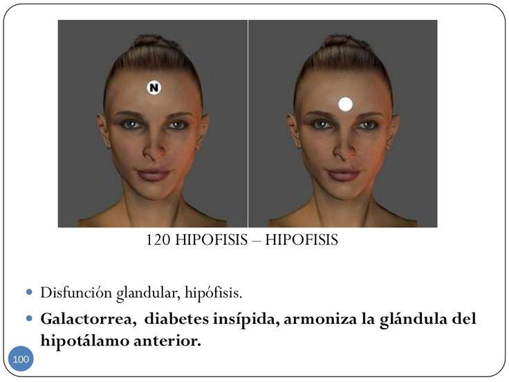 120 HIPOFISIS – HIPOFISIS  Disfunción glandular, hipófisis.  Galactorrea, diabetes insípida, armoniza la glándula del hi...