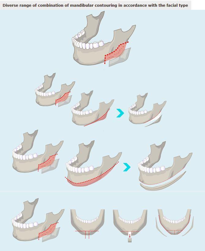 [Facial contouring - Madibular contouring] Korean plastic surgery, plastic surgery in korea, cosmetic surgery in korea, V-line surgery, facial contouring, jaw reduction, chin surgery, T-osteotomy in korea