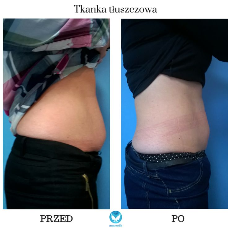 CARBOXYTHERAPY! This is amazing how the belly fat disappears after few treatment with #carboxytherapy. Co2 is a miracle.  www.maxmedik.pl