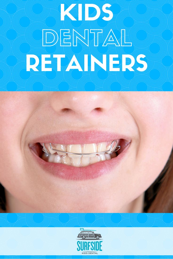 Basics about Kids dental retainers
