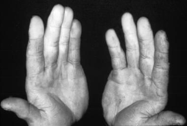 Photo of a patient with Raynaud phenomenon...well, I've had Lupus 22 years and I have finally developed this. Surprised I avoided it this long...one more cross to bear.