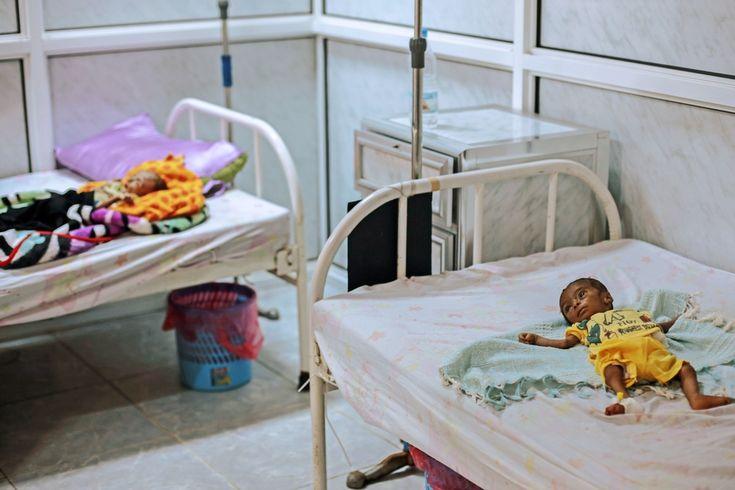 Μάιος 2016: Ο ηλικίας οκτώ μηνών Αγιάσι Ιμπραήμ βρίσκεται ξαπλωμένος σε κρεβάτι του νοσοκομείου Αλ Ταόρα στο Χοντεϊντάχ της Υεμένης, καθώς απειλείται η ζωή του από οξύ υποσιτισμό. Οι συγκρούσεις στην Υεμένη έχουν προκαλέσει σοβαρές ελλείψεις τροφίμων, και αυτή είναι η δεύτερη φορά που ο Αγιάσι νοσηλεύεται στο κέντρο υποσιτισμού του νοσοκομείου.